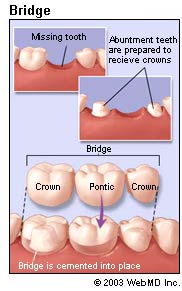 "A bridge is an ideal method to fill the space created by missing teeth. A bridge is one or more artificial teeth cemented into place using the teeth on either side for support. This is an option for filling the space created by a missing tooth. Bridge work is as much an art as it is an exact science since it replaces a missing tooth both functionally and cosmetically. The materials used may be gold alloys, porcelain bonded to metal alloy, or all ceramic material made to match your natural tooth color. The choice of material depends on requirements for strength, wear, and aesthetics.  It is important that a missing tooth be replaced as soon as possible. If not treated, the teeth surrounding the gap begin to shift inward. Since teeth use their neighbors for support, if one is missing they begin to ""fall"" and shift into the open spaces. This may worsen the bite because of the changes in pressure and can eventually result in problems with the jaw such as TMJ.  Bridges and crowns are made by first taking an impression of your mouth. The impression is sent to a dental lab where your crown or bridge will be custom made to fit your mouth and match your natural tooth color. A temporary crown or bridge will be placed into your mouth until your permanent crown or bridge is ready and cemented into place.  Bridges and crowns are very durable and can last a lifetime with extra care and good oral hygiene."