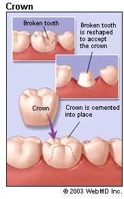 Crowns and bridges are used to restore and enhance teeth that are damaged or to take the place of missing teeth. A crown (also referred to as a cap) is used to entirely cover a damaged tooth. A crown not only strengthens a tooth, but it can dramatically improve a tooth's appearance, shape and alignment.  Crowns may be used to:  Replace a large filling when there is little tooth structure remaining  Protect a weak tooth from fracturing  Restore a fractured tooth  Attach a bridge  Cover a dental implant  Cover a discolored or poorly shaped tooth  Cover a tooth that has had root canal treatment