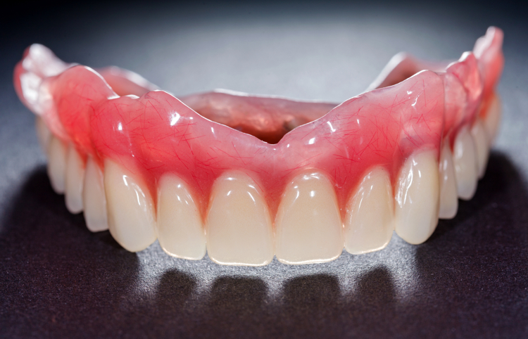A denture is a removable replacement for missing teeth and surrounding tissues. There are two types of dentures available, including partial and complete dentures. Partial dentures are used when some natural teeth remain, while complete dentures are used to completely replace all teeth.  This restoration method is used to restore your smile and mouth function if all your teeth have been lost. The dentures are custom created to resemble and are positioned to take the place of natural teeth. Complete dentures are removable and may require adjustments in order to create a proper fit with the gums and mouth.