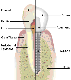 A dental implant is an ideal tooth restoration for people who are missing one or more teeth as a result of injury, periodontal disease, or any other reason. A dental implant is a metal post that is surgically positioned into the jaw. Once in place and bone surrounding the implant has had time to heal, a replacement tooth is attached to the post. While implants are typically more expensive than other methods of tooth replacement, they provide superior benefits. They are also a more favorable approach than bridgework since they do not depend on neighboring teeth for support. To receive implants, you need to have healthy gums and adequate bone to support the implant. You must also be committed to excellent oral hygiene and regular dental visits as these are critical to the long-term success of dental implants.